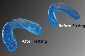 Boil and Bite Mouthguard - before and after fitting in the mouth