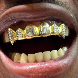 Bling bling grillz are also known as teeth grills