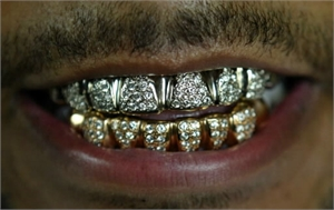 Teeth grills bling bling in the mouth
