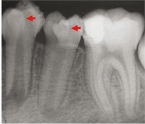 Dens in dente on x-ray