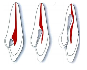 Dens in dente variations in the anatomy