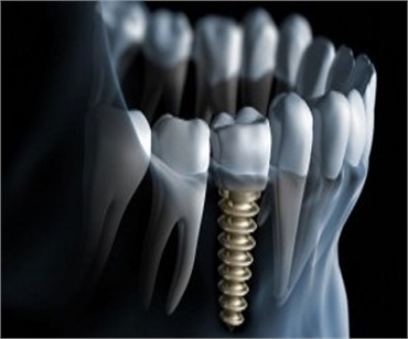 Dental Implants in Delhi