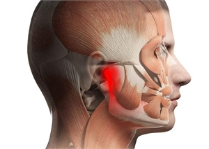 Top 10 best pain killers for TMJ pain