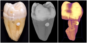 How enamel pearl looks in vivo, on xray and CT scan