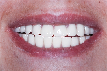 Dental Iimplants