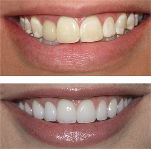 Teeth whitening - post whitening advice