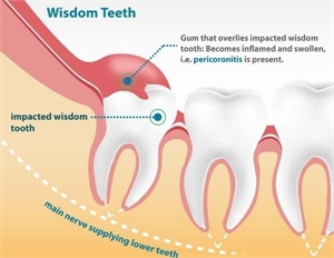 Pericoronitis is a dental condition in which the soft tissues around the erupting crown are swollen, red and inflamed.