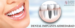 Is Dental Implant Treatment A Safe Way To Beautify Smile
