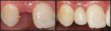 Front Tooth Implant Before And After