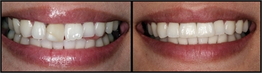 Implant And Crowns Before And After