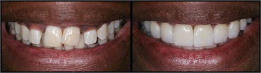 Gum Lift Veneers Before And After