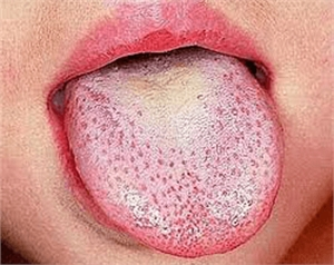 Scarlet fever causes enlargement of the fungiform papillae, or so called strawberry tongue