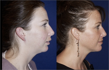Chin augmentation and Genioplasty