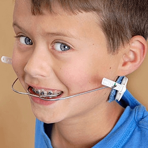 Orthodontic Headgear News Dentagama