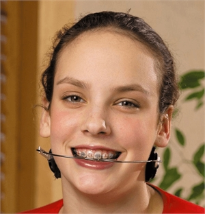 Orthodontic headgear