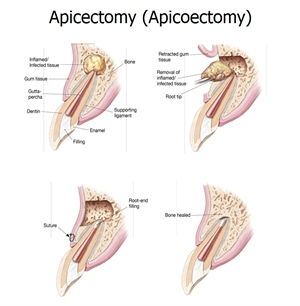 Apicectomy, also known as apicoectomy, is a minor surgical procedure of chopping off the root of the tooth and sealing it from the top.