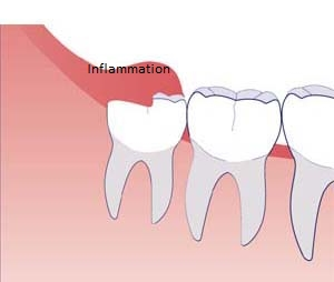 Pericoronitis around a wisdom tooth