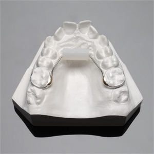 Bluegrass Orthodontic Appliance