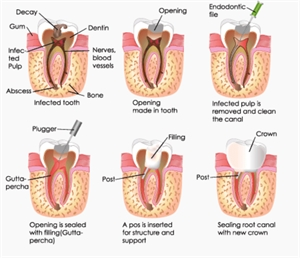 Endodontic root canal treatment