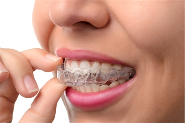 Why people choose invisalign over traditional braces