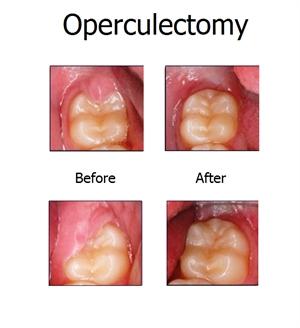Operculectomy News Dentagama