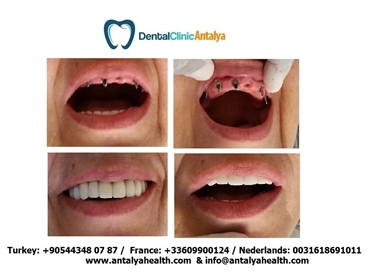 Dental Clinic Turkey