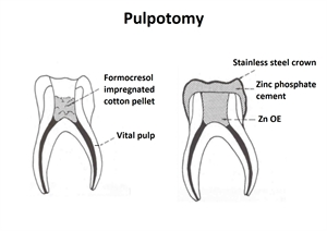 Pulpotomy is an endodontic procedure of removing the affected coronal part of the pulp.