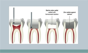 Pulpotomy procedure. It can be done on both adult and baby teeth.