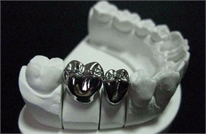 Stainless Steel Dental Crown News Dentagama