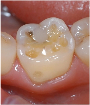 What are wear facets on teeth?