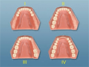 Kennedy classification in dentistry - 4 types of edentulous jaws used to plan the design for partial dentures