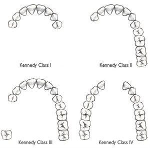 Kennedy classification is divided into 4 groups and is used to plan the partial dentures and the retention elements
