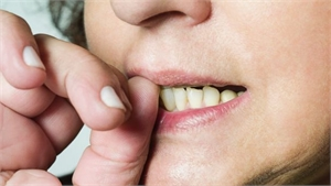 Effects of nail biting on oral health