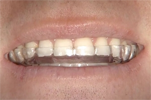 Dental night guards prevent wearing down the occlusal surfaces of the teeth