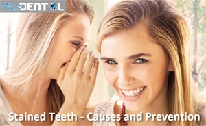 surrey dentist - stained teeth causes