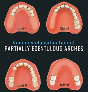 Kennedy Classification of partially edentulous dental arches