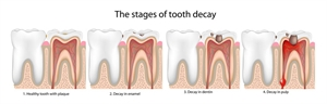 stages of tooth decay. Image  credit : www.ligockidentalgroup.com