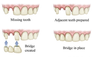 Everything You Wanted to Know about Dental Bridges