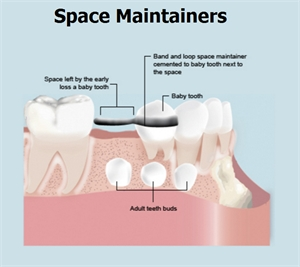 Space maintainers in dentistry