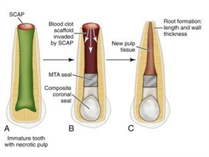 Regenerative endodontic therapy
