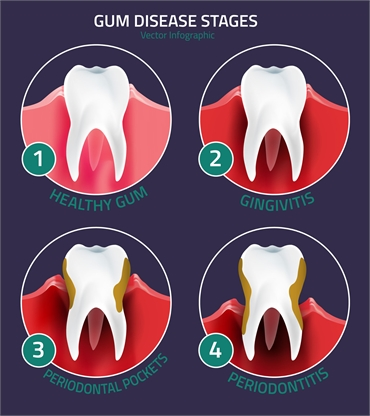 Medical Conditions that Affect Dental Health