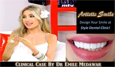 hollywood smile veneers lebanon
