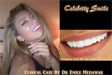 hollywood smile lebanon beirut