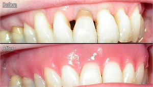 Removable gingival veneers