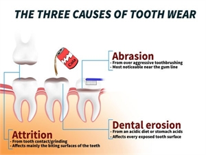 Dental erosion, abrasion and attrition may cause severe tooth wear.