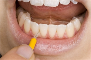 Cleaning lower incisors with an interdental brush