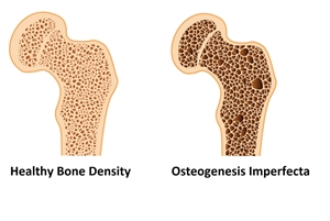 Osteogenesis Imperfecta (OI) is a genetic disorder, which compromises bone density