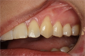 Gum recession on the upper left canine due to overbrushing. Right-handed patients tend to press their toothbrushes harder when brushing the teeth on the left. This is the reason sometimes you can see gum recession only on the left teeth.