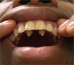 Hyperdontia is having extra teeth in the mouth. Synonym for hyperdontia is supernumerary teeth