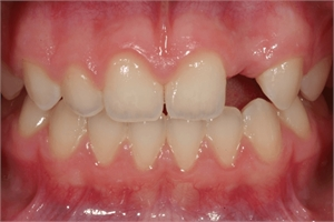 Hypodontia - most commonly missing teeth are the wisdom teeth and lateral incisors